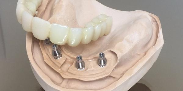 zobu_implanti_10