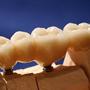 зубы класса premium