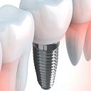 Implantācija