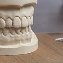 Zobu protezēšana